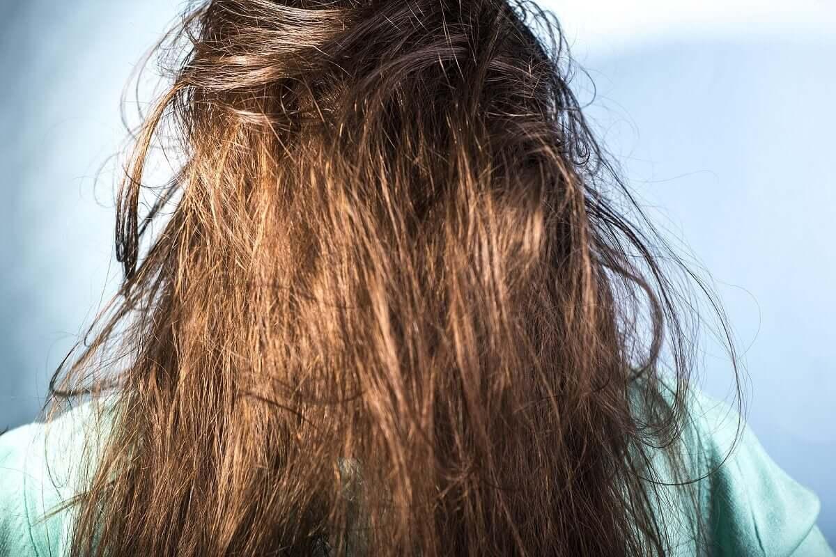 kadın ve yağlı saçları