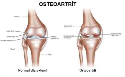 osteoartrit karşılaştırma