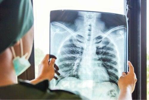 Bir hastanın akciğer röntgenini inceleyen bir doktor.
