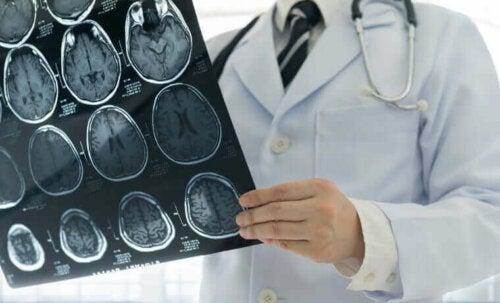 beyin röntgeni doktor