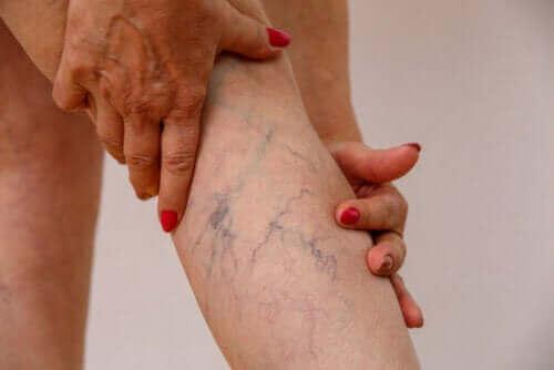 Flebit (Ven Enflamasyonu): Belirtileri ve Tedavisi
