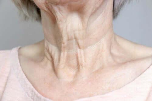 Bir kadının boynu çok kırışmış.