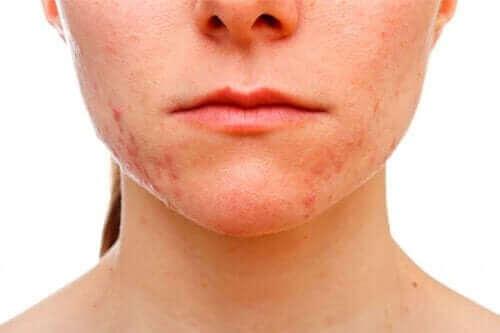 kadın yüz akne