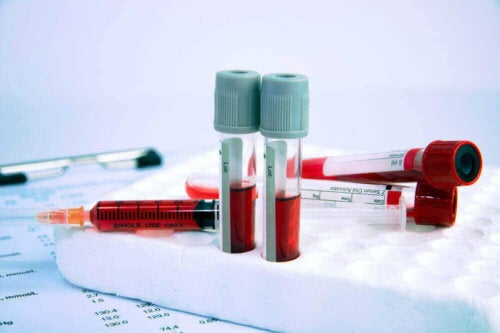 kan tüpleri