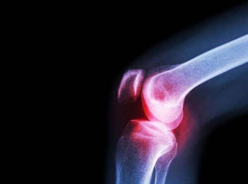 Septik Artrit: Nedenleri, Semptomları ve Tedavisi