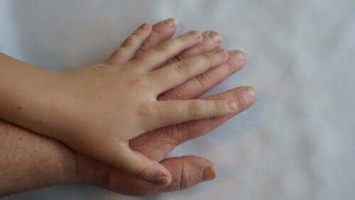 Akromegali Semptomları ve Tedavisi