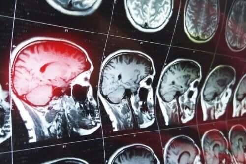 Bir dizi beyin tomografi görüntüleri