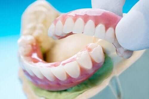 Diş Köprüsü: Türleri, Faydaları ve Dezavantajları