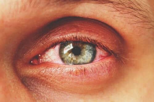 Epidemik konjunktivit olan bir kişinin gözü.
