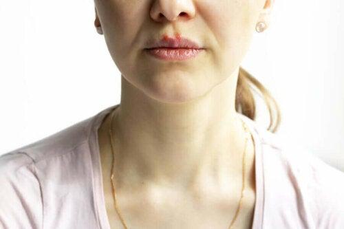 kadın dudak pemfigus vulgaris