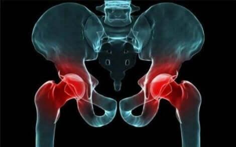 Kalça röntgeni