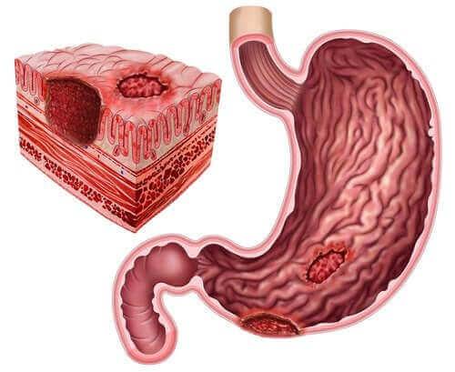 Peptik Ülser ve Helicobacter Pylori