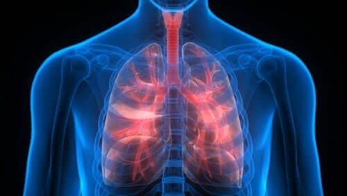 Pulmoner tromboembolizm ile ilgili bir görsel.