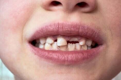 Süt dişleri dökülmeye başlamış çocuk