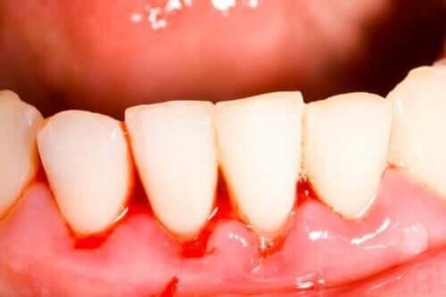Siper ağzı nedeniyle diş eti iltihabı