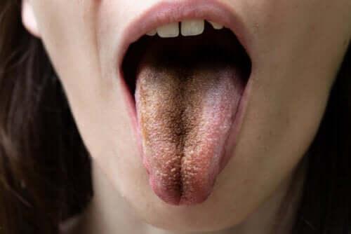 Siyah Kıllı Dil: Nedenleri, Belirtileri ve Tavsiyeler
