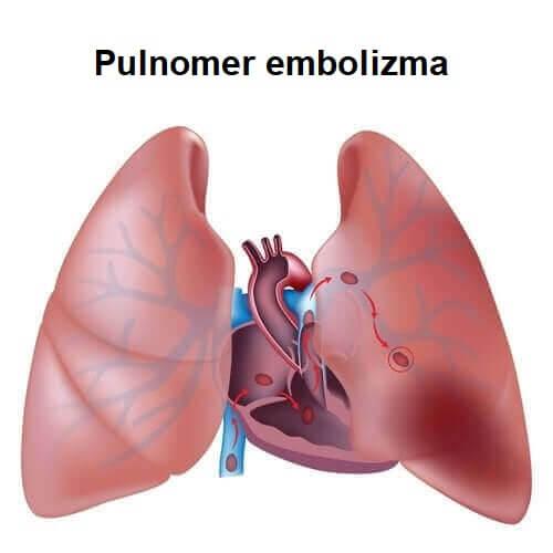 Pulmoner Tromboembolizm Hakkında Bilmeniz Gereken Her Şey