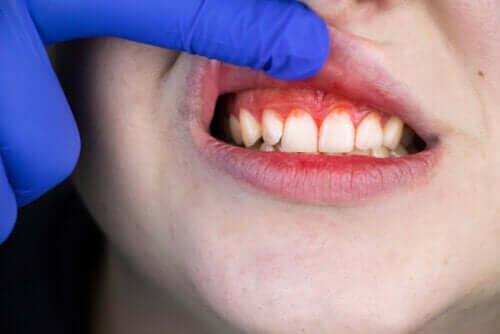 Siper Ağzı Hastalığı: Kökeni, Belirtileri ve Tedavisi