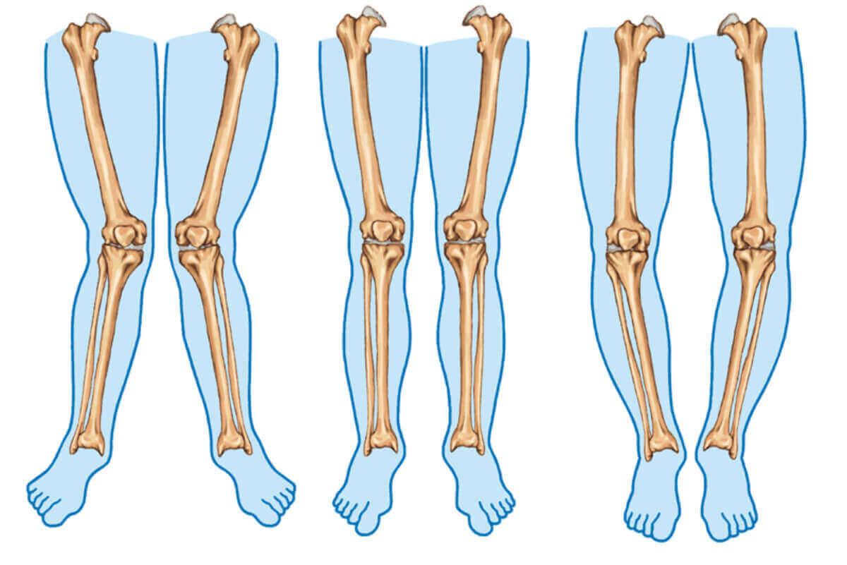 parantez bacak sendromunu gösteren kemik çizimi