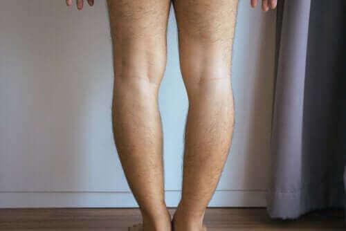 Çarpık Bacak veya Parantez Bacak: Nedenleri ve Tedavisi