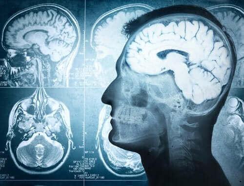 Beynin Bölümleri ve İşlevleri