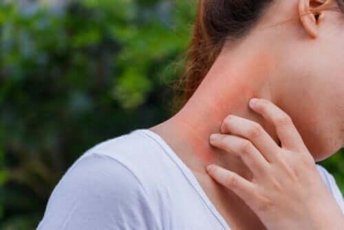 Dermatit ve Kortikosteroidler Arasındaki Bağlantı