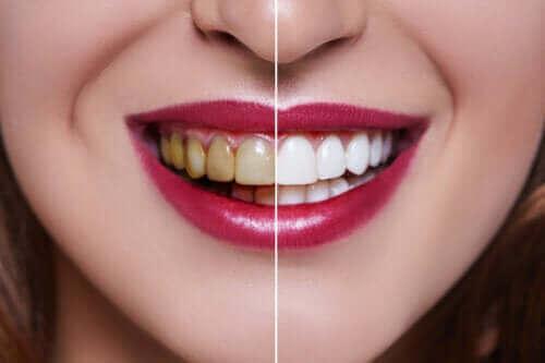 Lekeli Dişlerin Nedenleri