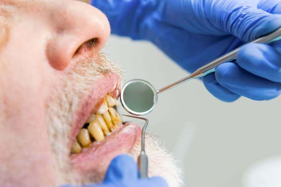 diş hekimi ziyaretindeki sararmış dişli adam