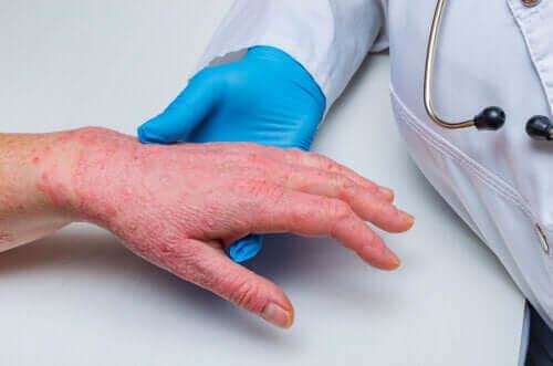 Sedef Hastalığı ve Koroner Kalp Hastalığı: Nasıl İlişkili?