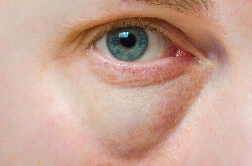 Şişmiş Göz Kapaklarının Nedenleri ve Tedavileri