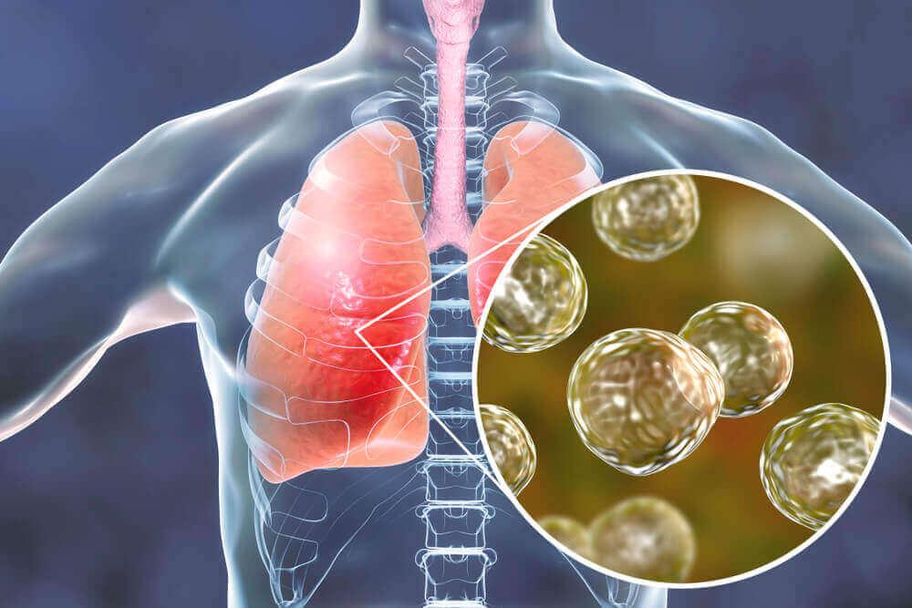 Akciğer tüberkülozu