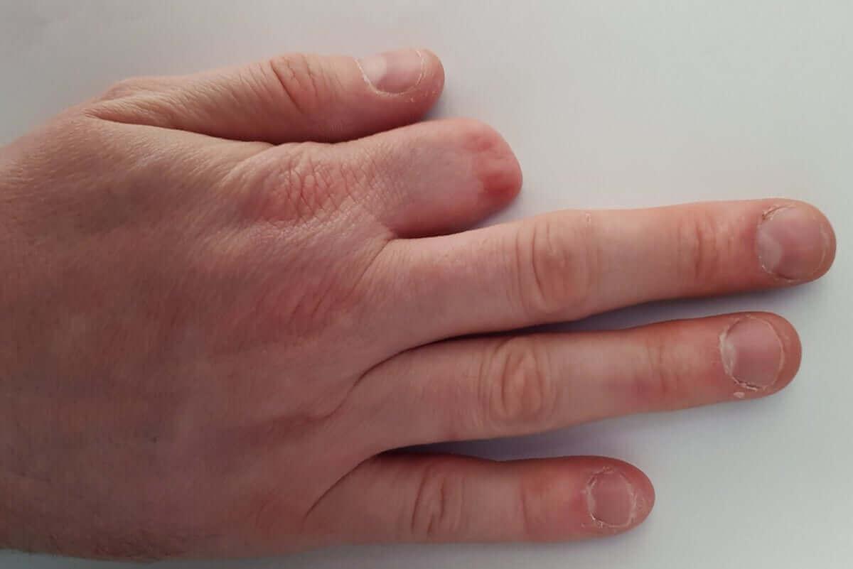 ampüte edilmiş parmak