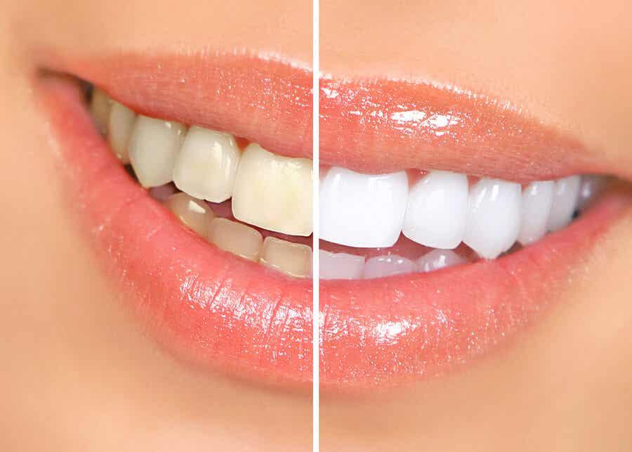 normal ve beyazlatılmış dişler