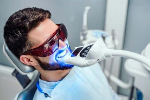 Diş Beyazlatma Ne Kadar Dayanır?