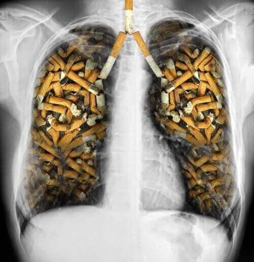 Sigara izmariti dolmuş akciğerler