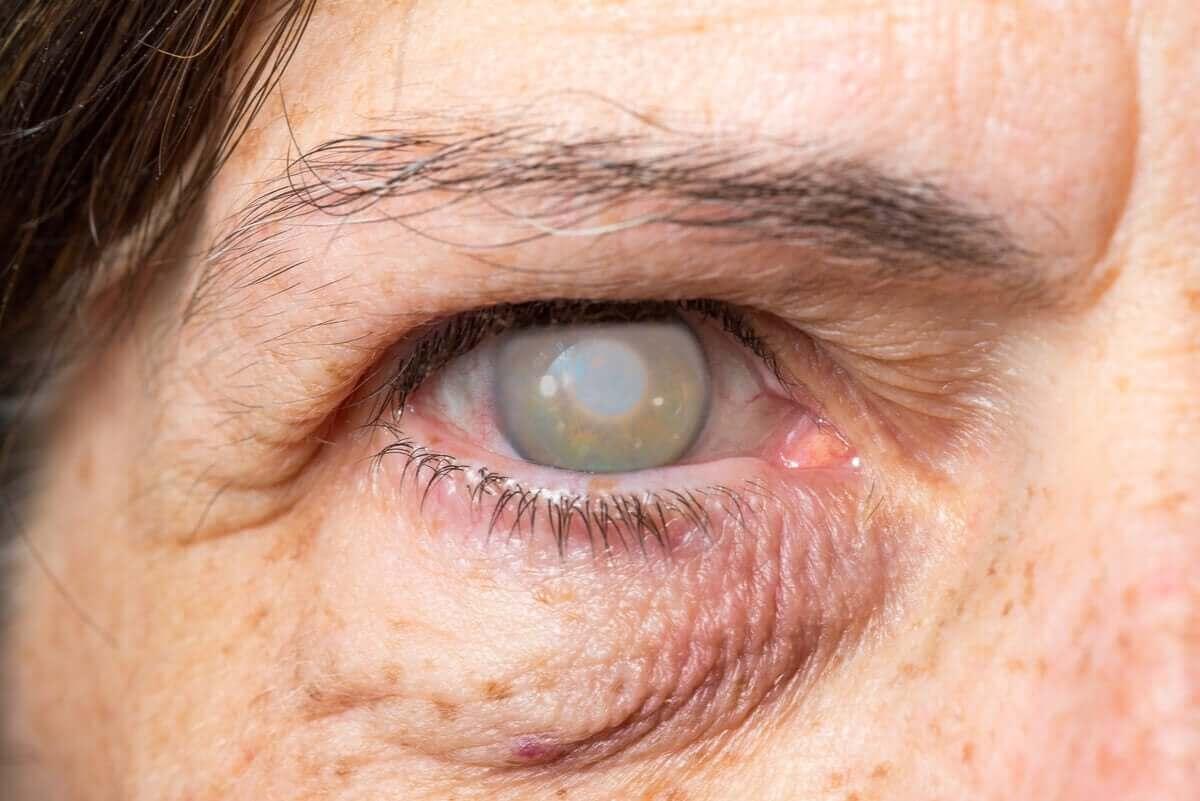 katarakt sorunu olan göz