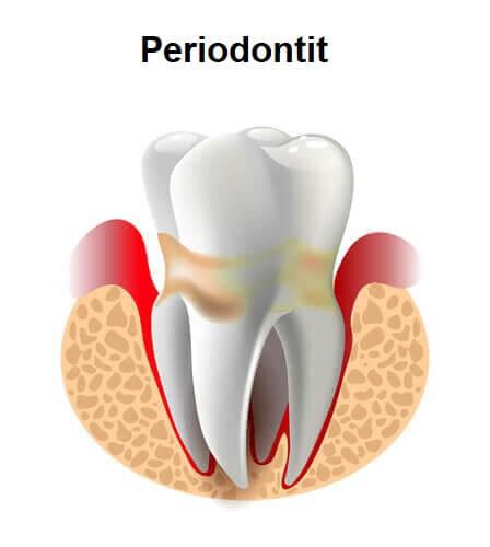 Periodontitli diş