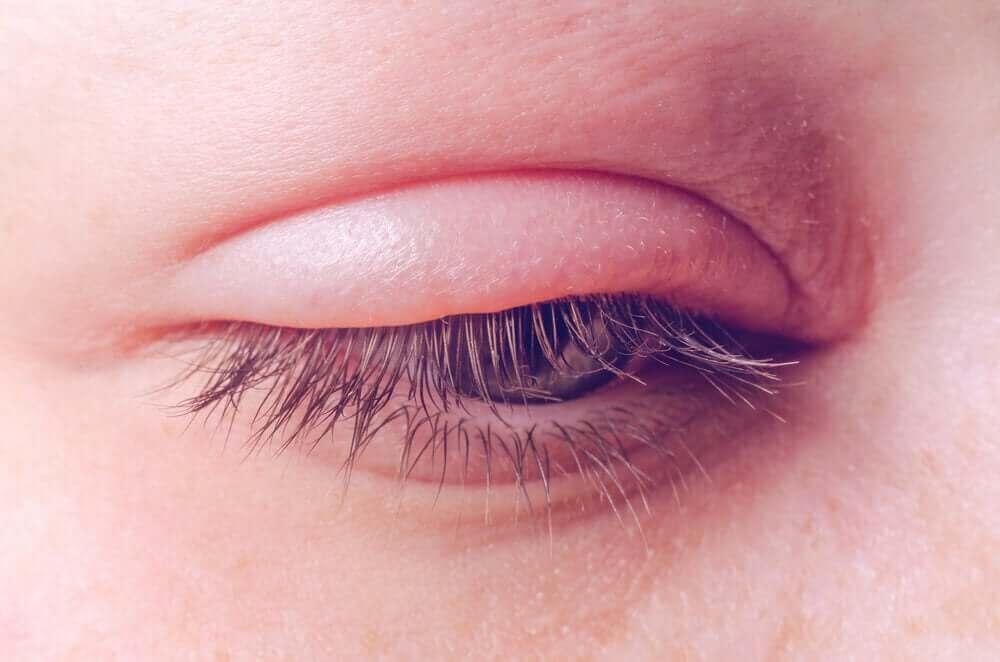 şişmiş göz kapağı