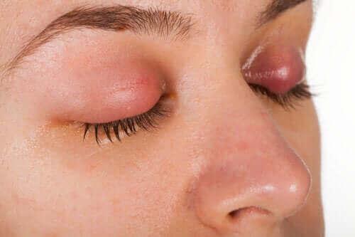 Göz Kapağı Kepeği Belirtileri ve Tedavisi